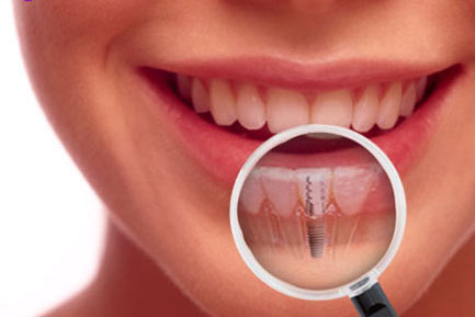 Best Dentist In Jhotwara